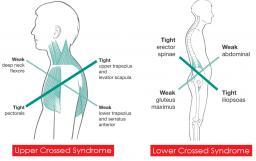 Back pain - Postural syndrome - Dr Gert Ferreira - Chiropractor in Centurion
