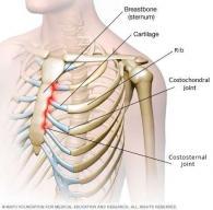 Back pain - Costochondritis - Chiropractor Centurion